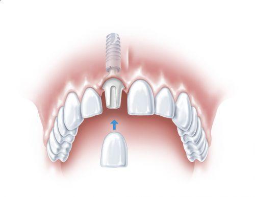 Cum poti evita un implant dentar?