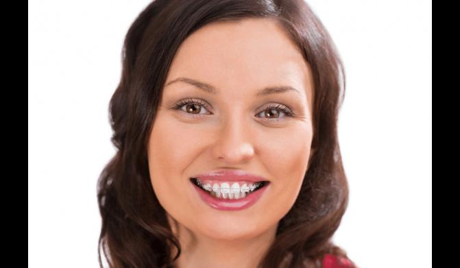 Care sunt cele mai comune tipuri de aparate dentare?